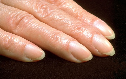 8 Warning's and Treatment of Pale Yellow Colour Nails