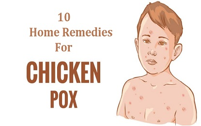 10 Home Remedies for the Treatment of Chicken Pox