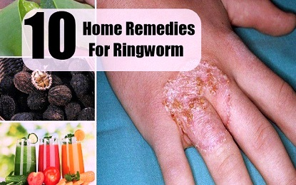 Top 10 Natural Home Remedies for Ringworm Treatment