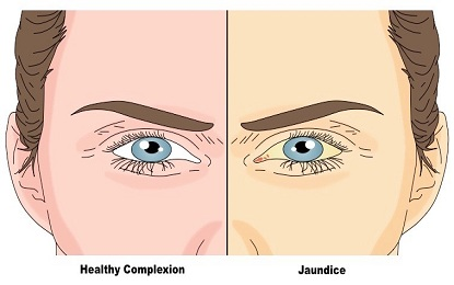 Jaundice Types Causes Symptoms Treatment