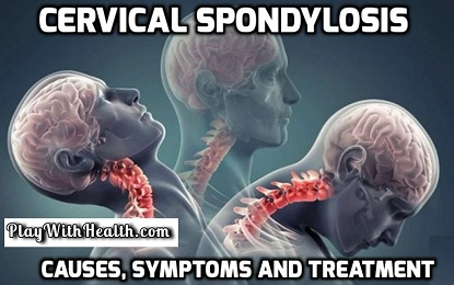 Cervical Spondylosis – Causes, Symptoms and Treatment