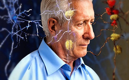 Due to Alzheimer These Changes Happens in Brain and Body
