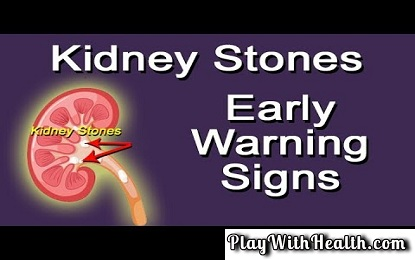 Know Early Warning Signs of Kidney Stones