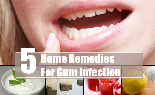 5 Home Remedies For Gum Infections That Really Works